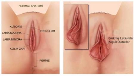 Genital Estetik Genital Estetik Ameliyatı Nasıl Yapılır Sonrası