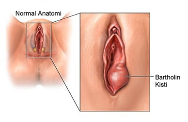 Swollen Labia After Yeast Contamination Treatment Yeast