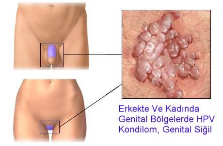 Genital Siğilkondilom Hpv Kondülom Resimleri Görüntüleri